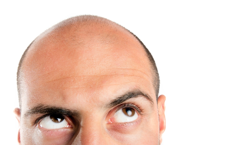 Hair loss is often caused by male hormone imbalance in older men.